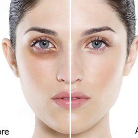 Syn-Eye chống thâm quầng mắt