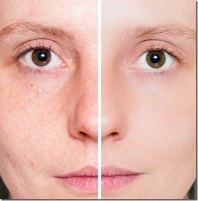 Làn da căng bóng mịn màng khi sử dụng tinh dầu nụ tầm xuân