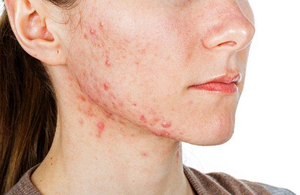 Các chất chống kích ứng da có trong các sản phẩm làm đẹp